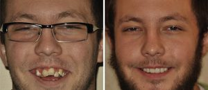EON Clinics teeth implants before and after