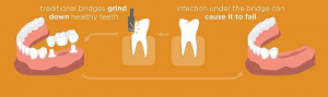 Graphic showing that traditional bridges grind down healthy teeth and show infection under the bridge can cause it to fail