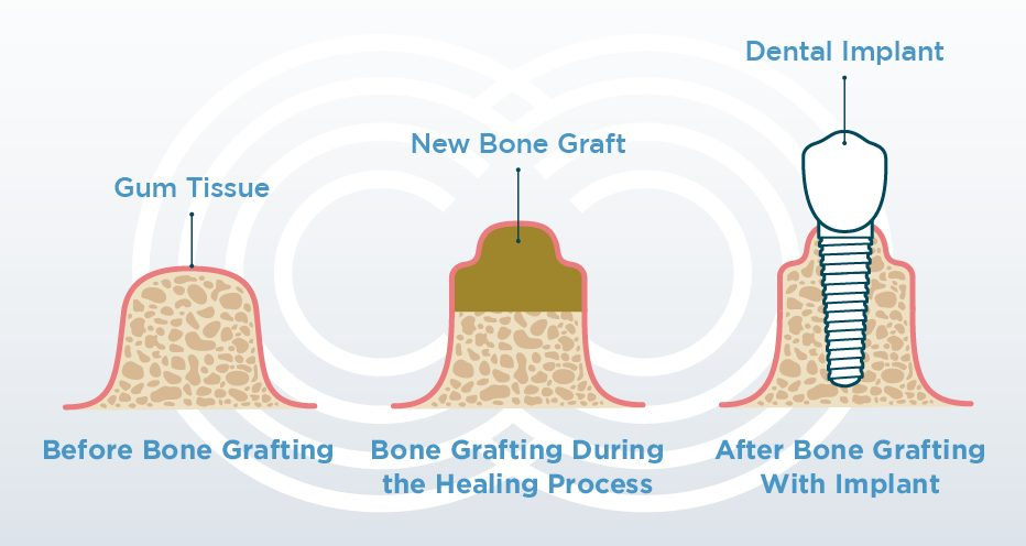 Bone Grafting: Can You Have Dental Implants With Bone Loss?