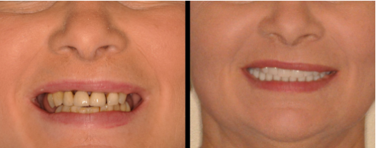 Patient before and after dental implants